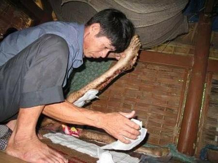 Xót xa chàng trai 10 năm liệt giường, cơ thể lở loét - 2