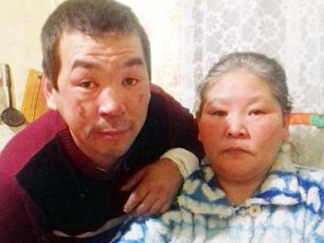 Cặp đôi sống sót suốt 36 giờ dưới trời lạnh -50 độ C