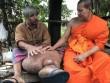 Người đàn ông Thái Lan khốn khổ vì chân to như voi
