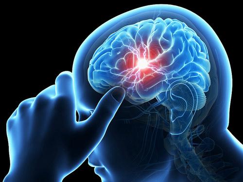8 ngộ nhận tai hại khiến người trung niên, cao tuổi dễ liệt vì tai biến - 1