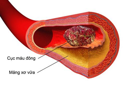 Huyết áp cao 10 năm không sợ tai biến nhờ cách này của dược sĩ - 2
