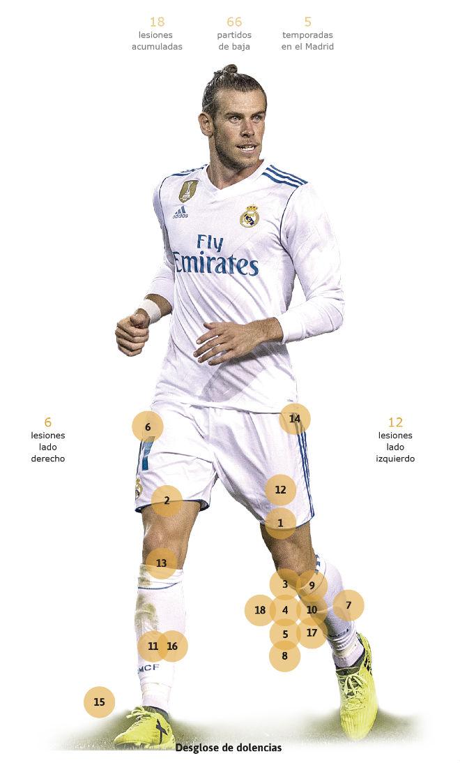 """Siêu """"thương binh"""" Real, Gareth Bale: Bóng vàng chưa đến đã lo nghiệp tàn - 1"""
