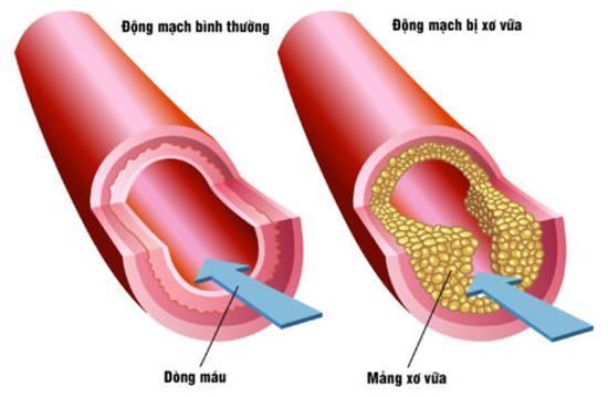 Xơ vữa mạch vành, đau tim: Mẹo nhỏ cứu bạn khỏi nguy hiểm đe dọa suốt đời! - 1