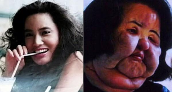 """Showbiz Hàn: """"Đập mặt xây lại"""" không phải lúc nào cũng như mơ - 3"""