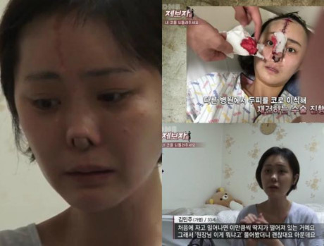 """Showbiz Hàn: """"Đập mặt xây lại"""" không phải lúc nào cũng như mơ - 2"""