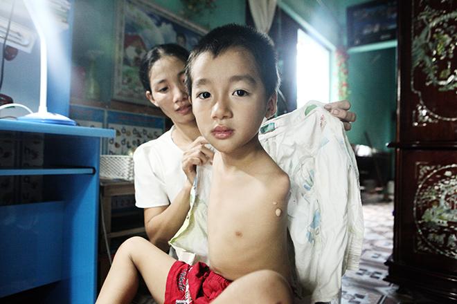Ảnh - Clip: Đôi chân diệu kì của cậu bé 7 tuổi không tay - 1