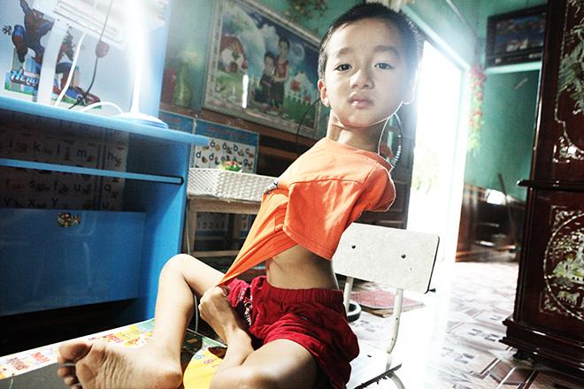 Ảnh - Clip: Đôi chân diệu kì của cậu bé 7 tuổi không tay - 3