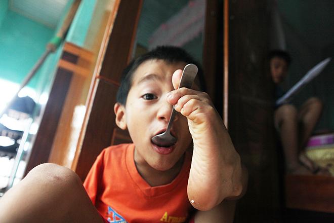 Ảnh - Clip: Đôi chân diệu kì của cậu bé 7 tuổi không tay - 12