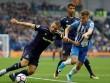 Chi tiết Brighton - Everton: Rooney lên tiếng (KT)