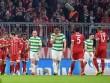 """Bayern Munich - Celtic: Mở hội ngày thay """"siêu tướng"""""""