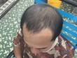 Đẩy lùi nỗi ám ảnh của cánh mày râu về rụng tóc, hói đầu