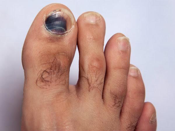 9 triệu chứng ở móng cho biết tình trạng sức khỏe của bạn - 1