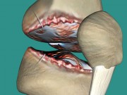 Đau nhức xương khớp do thoái hóa: Hàng ngàn bệnh nhân bất ngờ đón tin vui!