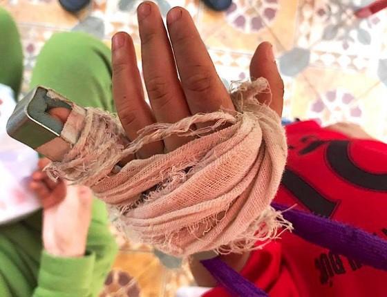Phụ huynh tố cô giáo mầm non đánh gãy ngón tay của trẻ - 1