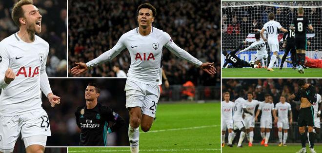 Real thua đau Tottenham: Báo Anh ngây ngất, triệu fan lo cho Zidane - 4