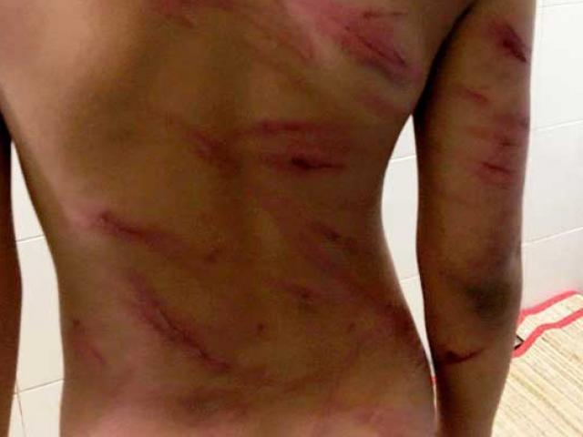 Bắt giam cha dượng bạo hành dã man con riêng của vợ - 2