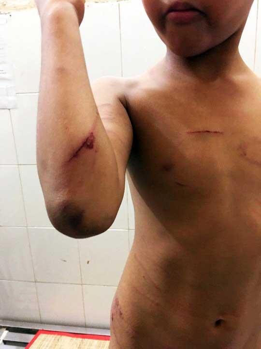 Bé trai bị cha dượng đánh đập hết sức dã man - 2
