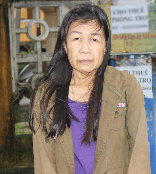 """Cô gái Việt mắc bệnh """"lão hóa nhi"""" cực hiếm trên thế giới - 1"""