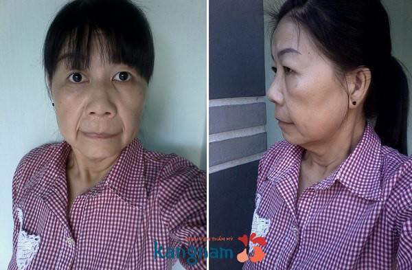 """Cô gái Việt mắc bệnh """"lão hóa nhi"""" cực hiếm trên thế giới - 2"""