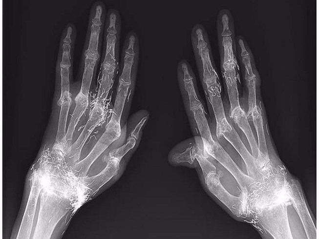 Dùng vàng khâu khớp tay để trị thấp khớp - 1