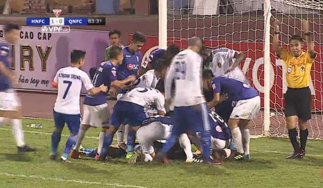 Kinh hoàng chấn thương V-League: Bất tỉnh sau va chạm, suýt cắn lưỡi - 2