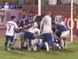 Kinh hoàng chấn thương V-League: Bất tỉnh sau va chạm, suýt cắn lưỡi