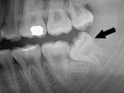 Sức khỏe đời sống - Thai phụ bị đình chỉ thai kỳ vi răng khôn mọc lêch gây áp xe nặng