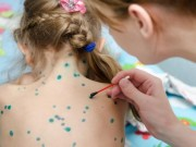4 điều phụ huynh cần lưu ý để bảo vệ trẻ trước mùa cao điểm bệnh thủy đậu