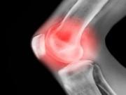 Viêm đau xương khớp thoái hóa: Hàng ngàn bệnh nhân đón tin vui nhờ mẹo nhỏ!