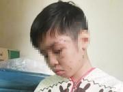 Tin tức trong ngày - Bé trai bị đánh rạn xương sườn: Mẹ kế khai lý do hành hạ con chồng