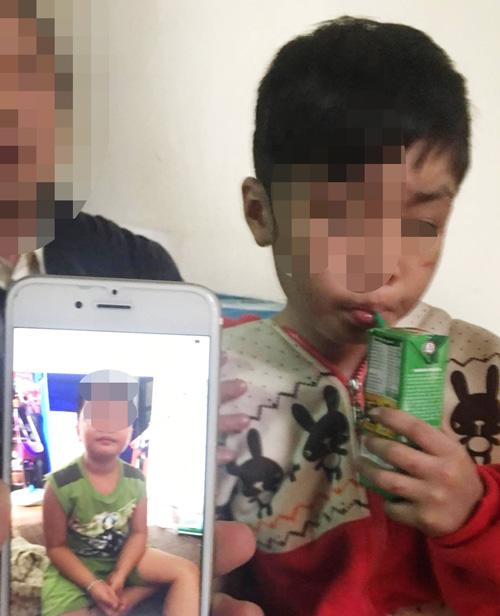 """Vụ bé trai 10 tuổi bị bạo hành ở HN: """"Đừng hỏi về việc cháu bị bố đánh nữa"""" - 1"""