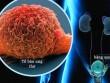 Đi tiểu trên 2lần/đêm dấu hiệu cảnh báo nguy cơ ung thư bàng quang