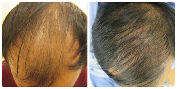 Cấy tóc sinh học Bio Fibre - giải pháp ưu việt cho người hói đầu - 2