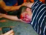 Cãi nhau với vợ cũ, cha dùng dao đâm chết con trai 5 tuổi