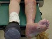 Suýt mất chân vì  bài chữa lạ  của lang vườn