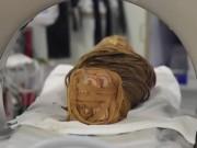 Ai Cập: Bị ung thư, 2.000 năm sau mới được phát hiện