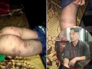 Bố đánh con trai 9 tuổi chi chít sẹo:  Tôi không lấy vợ 2 vì còn con cái