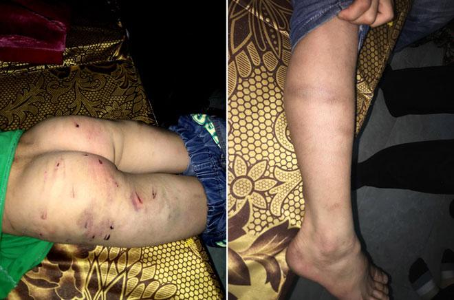 Quyết định bất ngờ của mẹ bé trai 9 tuổi bị bố đánh chi chít sẹo - 2
