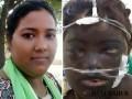 Số phận bi thảm của người vợ bị chồng tạt axit cháy mặt, mù mắt vì đi làm
