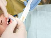 Thử nghiệm nhuộm răng đen để chống sâu răng