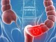 Bệnh viêm đại tràng nên ăn gì và kiêng gì?