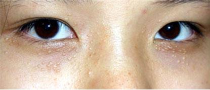 Không thể coi thường biến chứng nguy hiểm của Mụn thịt quanh mắt (U tuyến mồ hôi) đối với nền da mặt, Làm đẹp,
