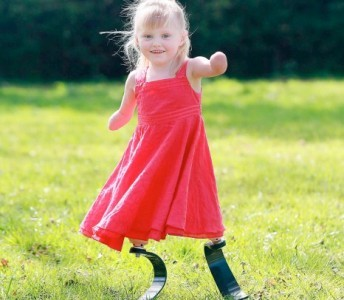 Bé gái được lắp chân bằng sợi các-bon  - 1