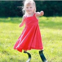 Bé gái được lắp chân bằng sợi các-bon