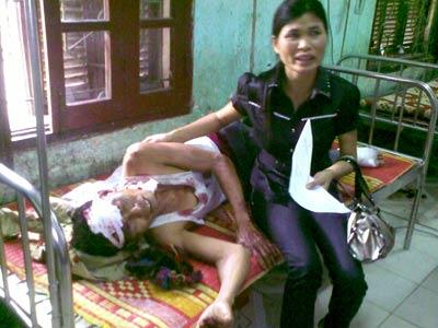 Hà Tĩnh: Tai nạn kinh hoàng - 1