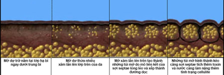 Mỡ thừa & Cellulite vùng bụng - 1