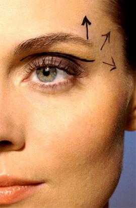 Cải thiện mắt sụp mí - 1