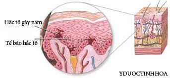 Nám da, tàn nhang – Giải pháp điều trị từ bên trong! - 1