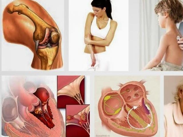 """Chuyên gia tim mạch nói về bệnh """"thấp khớp đớp tim"""""""