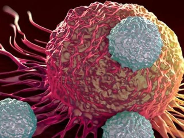 14 dấu hiệu bệnh ung thư biết càng sớm càng tăng cơ hội vượt mặt thần chết